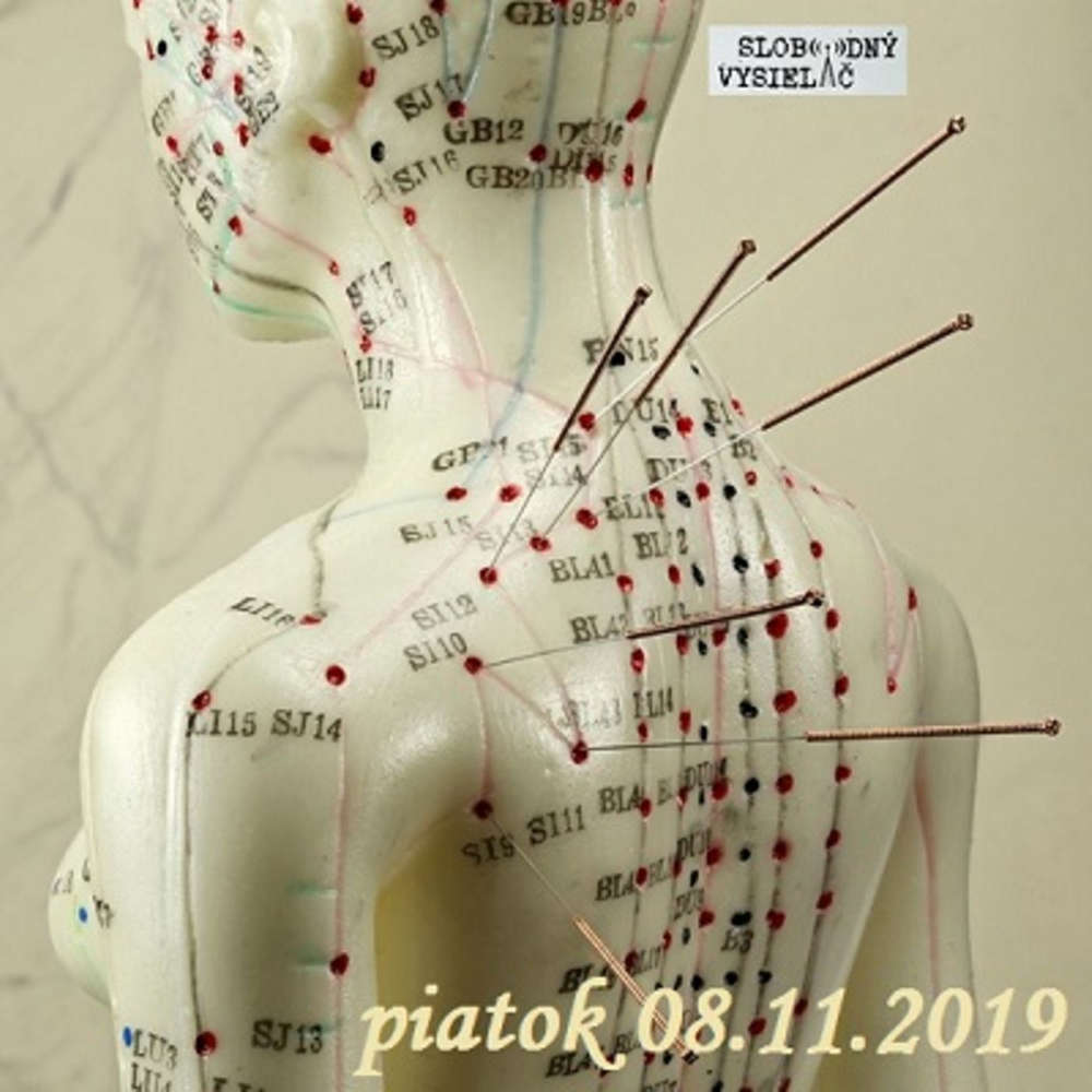 Riešenia a alternatívy 136 - 2019-11-08 Akupunktúra
