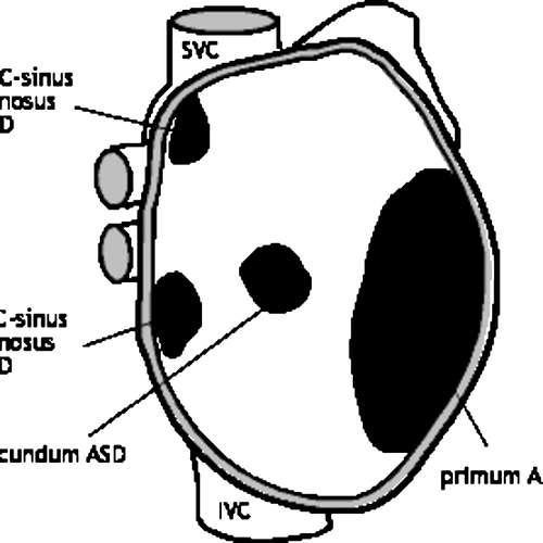 (KardioPodcast #4) Státnice z pediatrie jsou tu - aneb Defekt Septa Síní