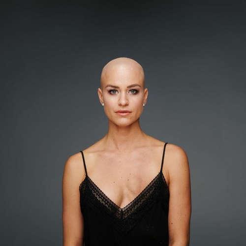 EP.81 Lívia Ilavská - Rakovina prsníka v 32 rokoch mi ukazuje život z inej strany